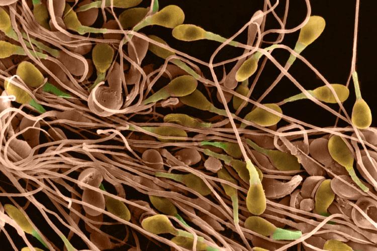 что способствует быстрому созреванию сперматозоидов-зо3