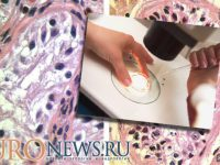 Необструктивная азооспермия и гипосперматогенез, причины