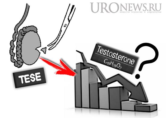 Вероятность развития гипогонадизма после биопсии яичек (TESE)