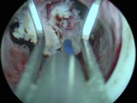 Эндоскопическое лечение стриктур уретроцистоанастомоза после радикальной простатэктомии