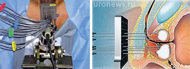 Криоаблация простаты (рак предстательной железы)