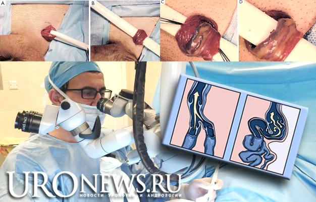 Микрохирургическая операция мармара при варикоцеле