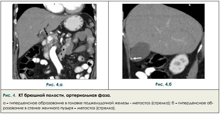 Компьютерная томография брюшной полости артериальная фаза