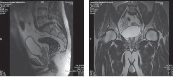 Рис. 3. Пациент Е. МР-картина местно-распространенной дукталь- ной аденокарциномы, состояние после ТУР в области шейки мочевого пузыря и задней уретры. Рис. 4. Пациент Х. МР-картина местно-рапространенного РПЖ, та- зовой лимфаденопатии