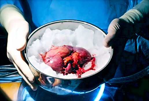 Резекция почки, выполненная вне организма оперируемого