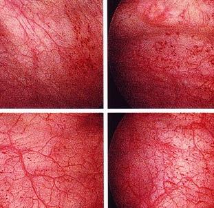 Лечение хронического цистита — толтеродин