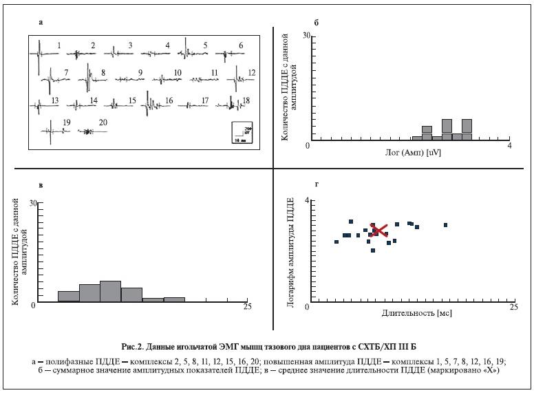 Рисунок 2. Данные игольчатой ЭМГ мышц тазового дна пациентов с СХТБ/ХП III Б.