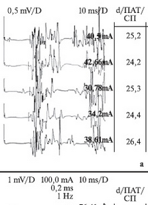 Нейрофизиология при хроническом простатите (синдром хронической тазовой боли)