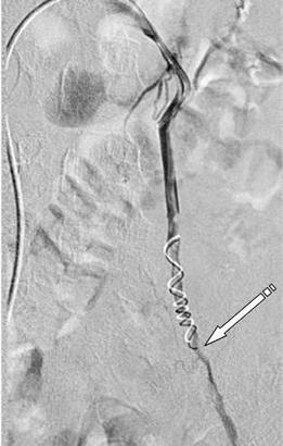 Лечение варикоцеле — рентгенэндоваскулярная склеротеапия