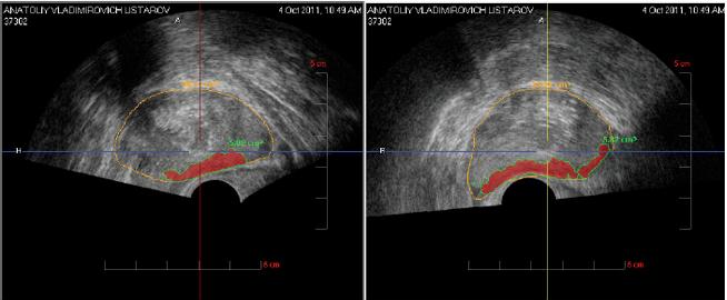 Гистосканирование простаты (Фото) сагиттальная и поперечная получаются при ультразвуковом сканировании аппаратом pro-focus фирмы BK-Medical