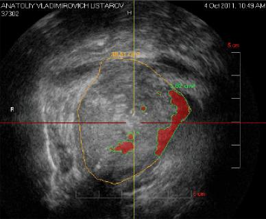 Рисунок 4 - Гистосканироание простаты (фото) Виртуальная плоскость простаты – фронтальная (краниальная)
