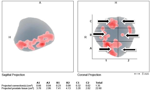 Рисунок 6 - Карта предстательной железы поучаемая при гистосканировании. Стрелками обозначены подозрительные участки ткани простаты на предмет онкологического поражения.