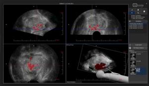 Гистосканирование — метод диагностики рака предстательной железы.