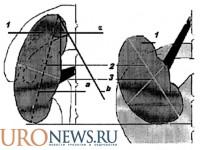 Топографо-анатомические особенности почки могут влиять на мужскую фертильность