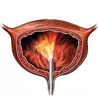 Цистоскопия при лейкоплакии