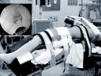Фонкус на деталях. Положение больного на операционном столе при антеградном и ретроградном доступе