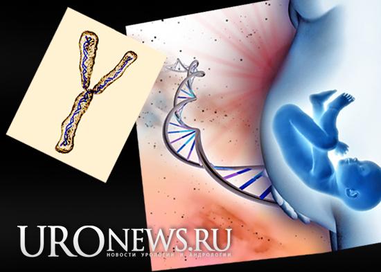 Олигозооспермия и азооспермия при выявлении микроделеций Y-хромосомы (AZF)