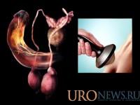 Ударно-волновая терапия в лечении болезни Пейрони. Опыт применения