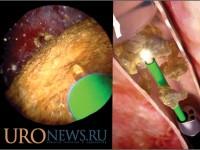 Лазерная уретеролитотрипсия (LULT), сравнение срочных и отложенных оперативных пособий