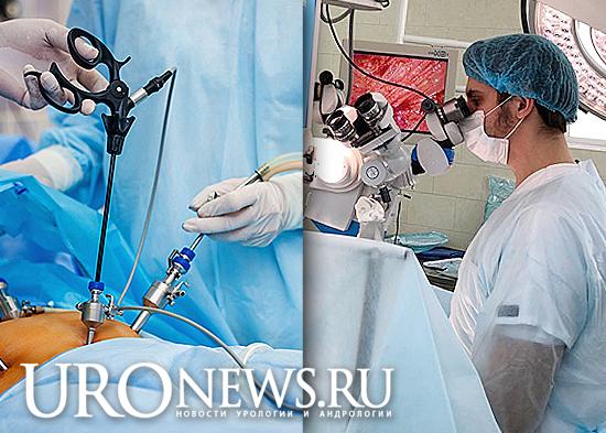 Хирургическое лечение варикоцеле, какой метод лучше?