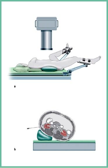 положение больного на операционном столе при антеградном и ретроградном доступе при КУЛТ и ЧНЛТ