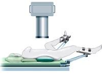 Положение больного на операционном столе при чрескожной нефролитотрипсии (ЧНЛТ): мета-анализ.
