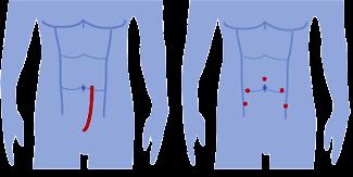 простатэктомия варианты хирургических доступов