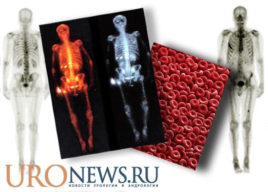 Гемоглобин как показатель выживаемости у пациентов с костно-метастатическим раком предстательной железы
