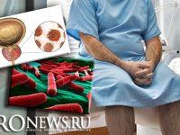 Хронический простатит как причина рака предстательной железы
