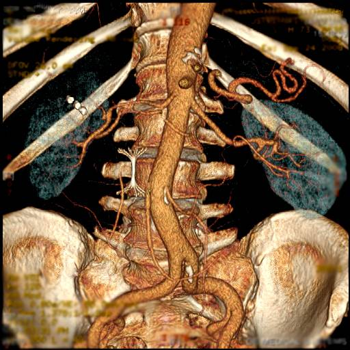 Эмболизация и аблация, при лечении опухоли почки