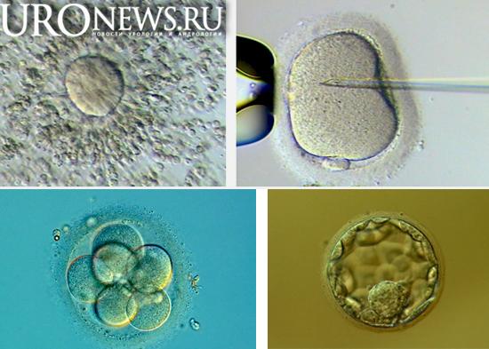 Влияние фрагментации ДНК  сперматозоидов на ранние этапы эмбрионального развития при ЭКО