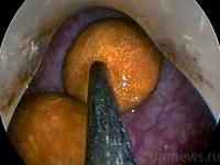 Трансуретральная контактная цистолитотрипсия в газовой среде