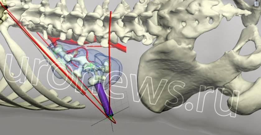 Схематическое изображение хода чрескожной нефролитотрипсии (ЧНЛТ).