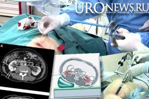 Как положение пациента при компьютерной томографии может повлиять на доступ при чрескожной нефролитотрипсии