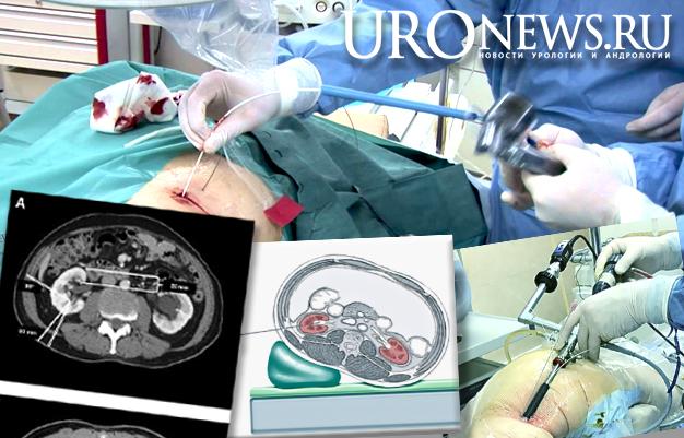 чрескожная нефролитотрипсия компьютерная томография