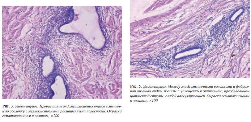 эндометриоз и рак мочевого пузыря