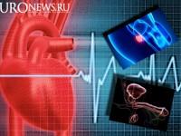 Прослеживается связь между аденомой простаты, эректильной дисфункцией и патологией сердечно сосудистой системы