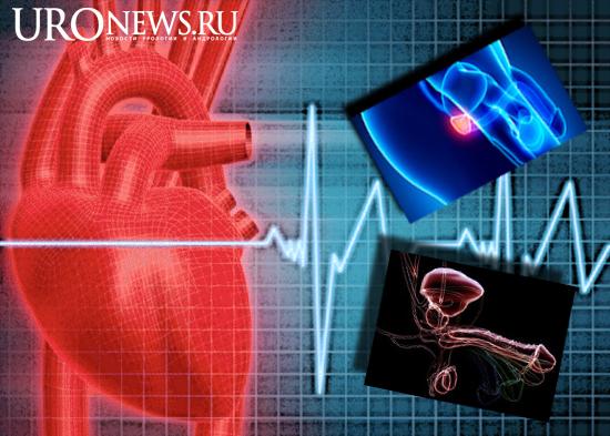 эректильная дисфункция и аденома простаты при заболеваниях сердечно-сосудистой системы