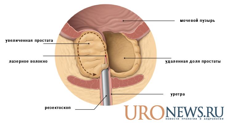 Реабилитация после операции на аденома простаты