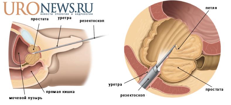 Рисунок, схема операции (ТУР простаты) Удаление аденомы простаты