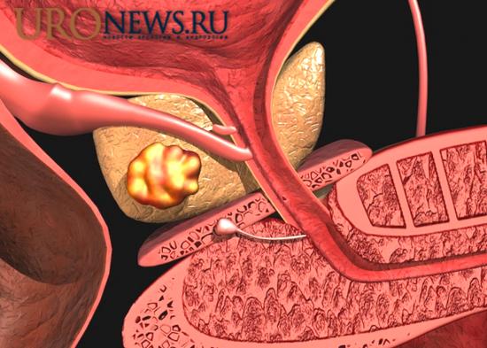 кастрационно-резистентный раком предстательной железы лечение