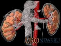 Новый подход в изучении анатомо-функционального состояния почек при мочекаменной болезни