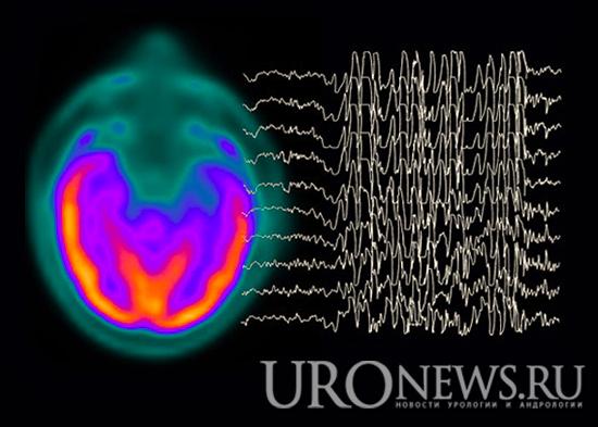 Эректильная дисфункция и нарушения фертильности у мужчин страдающих эпилепсией