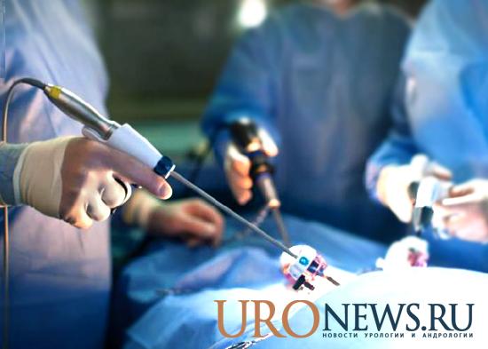 симультанные операции лапароскопия в урологии