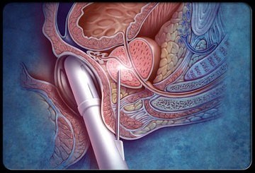 Диагностика рака предстательной железы — есть вопросы.