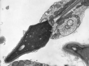 Спермоплазмы при мужском бесплодии