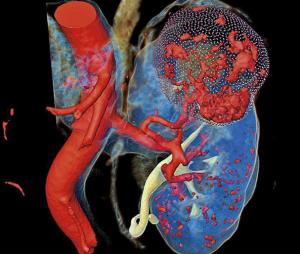 Трехмерная модель почки с опухолью