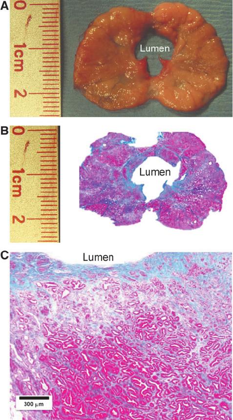 Внешний вид предстательной железы и гистологическая картина ткани простаты через 6 недель после акваабляции.
