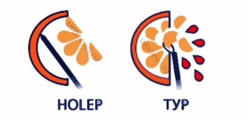 Преимущества методики лазерной энуклеации (HOLEP) перед трансуретральной резекцией (ТУР) схема