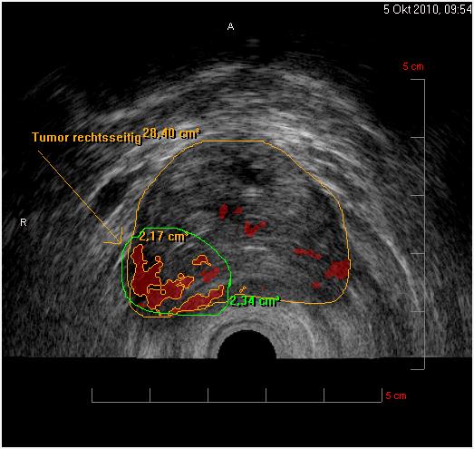 Гистосканирование предстательной железы (Histoscanning)